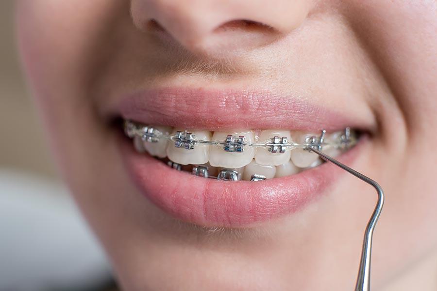 Braces Orthodontist Doncaster