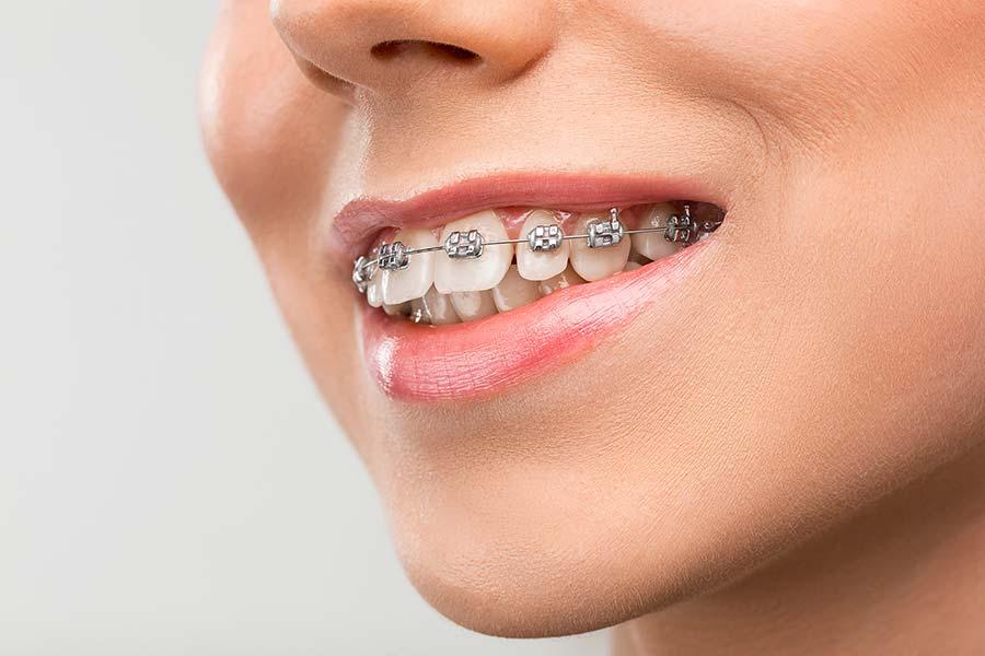 Orthodontics Doncaster
