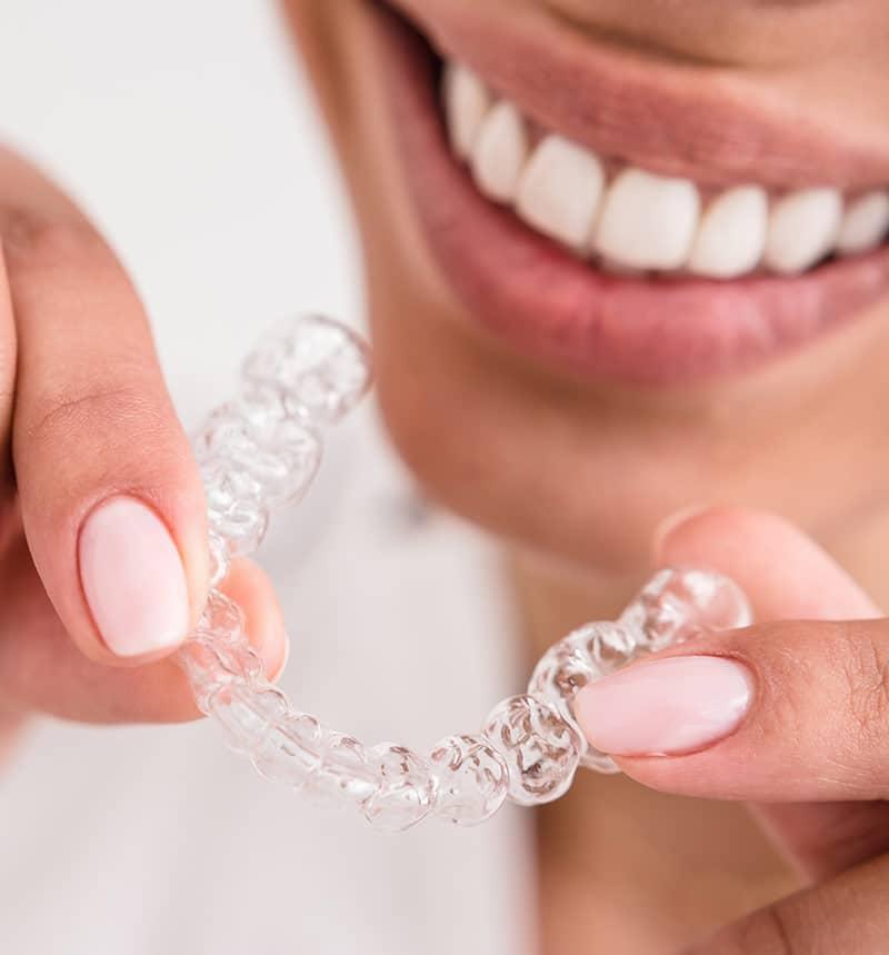 Dental Mouthguard Doncaster
